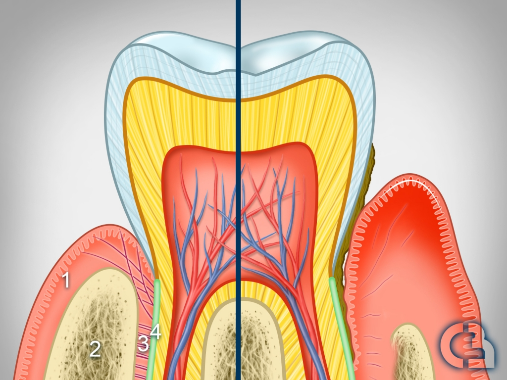 coupe-de-dent-parodontite