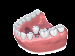 prothèse sur implant d'une seule dent