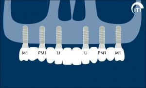 remplacement de toutes les dents 2