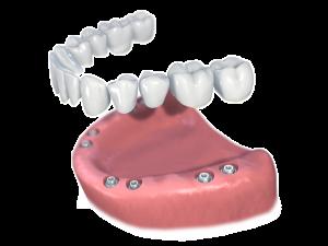 remplacement de toutes les dents
