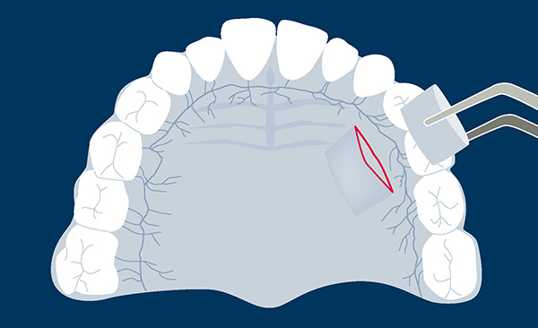 vignettes-fiches-chir-muco-gingival